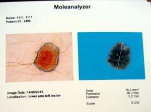 Analiza automata computerizata si calcularea coeficientului (scor) de risc oncogen