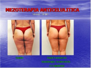 Mezoterapia anticelulitica(Scaderea in greutate)