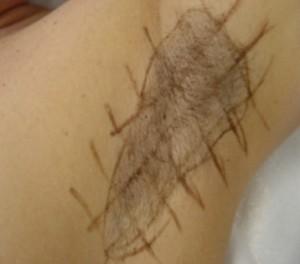 Terapia transpiratiei excesive cu Botox